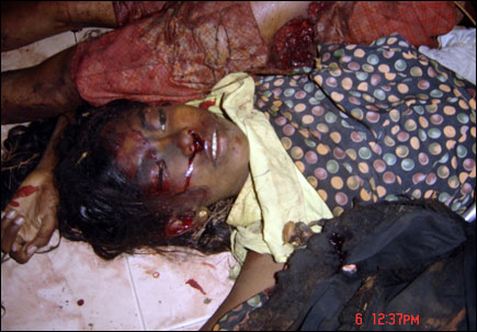 Nallur-Upooral shell attack