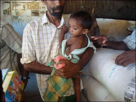 Malnutrition cases in Vanni